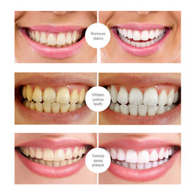 Teeth Whitening Essence(Oral Hygiene Cleaning Serum Bleaching)