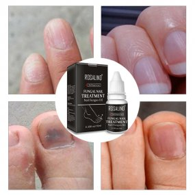 Rosalind 10ML Nail Fungus Repair Solution