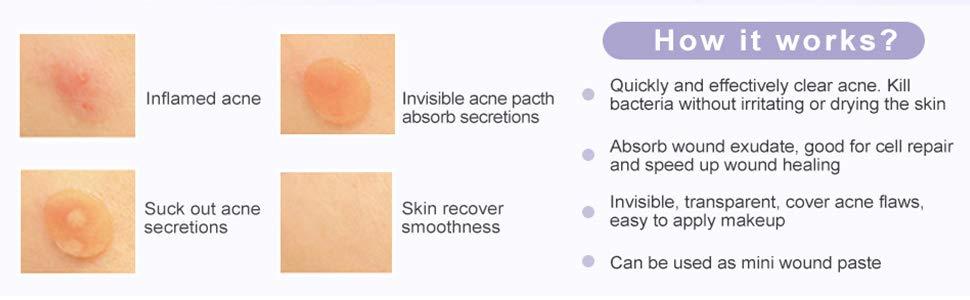Shop Acne Pimple Master Patch,Φ12mm, 20 Dots x 6 Sheets(120