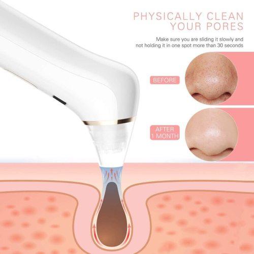 Liberex Women's Blackhead Remover Pore Vacuum